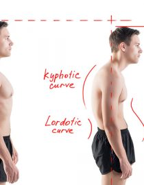 Osteoporosis and Kyphosis — What Are the Risks?